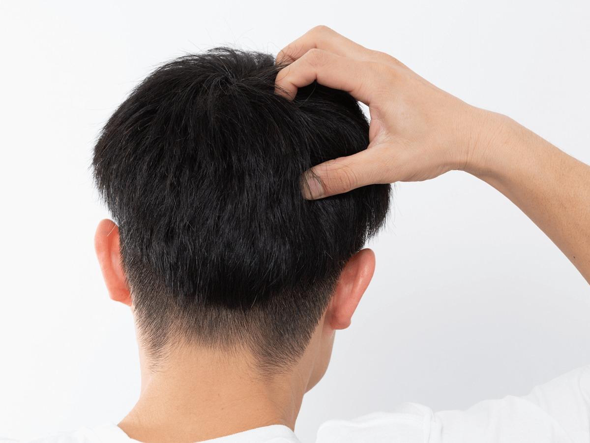 男の髪がパサつく原因と対策方法・おすすめシャンプー・ヘアケアアイテム9選のサムネイル
