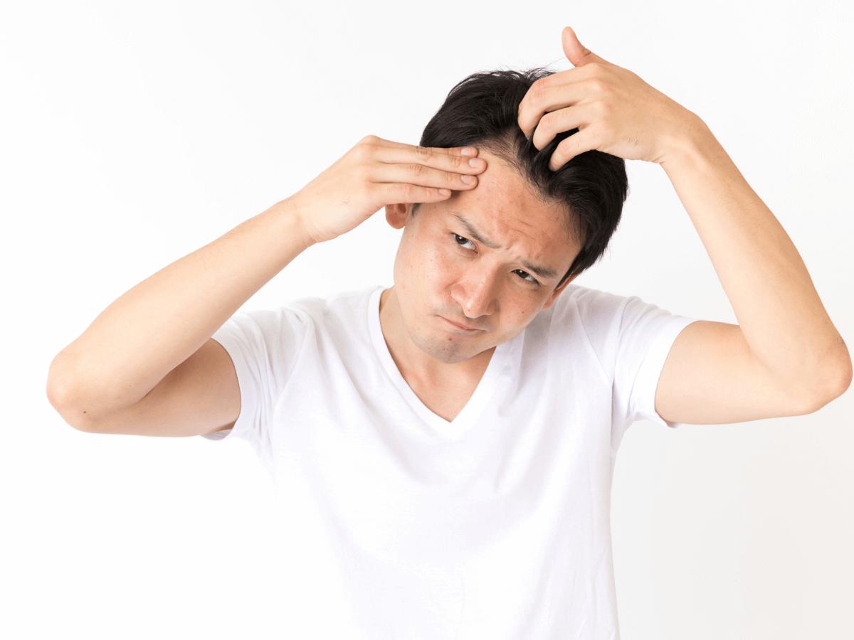 【最近抜け毛が増えた男性必見】ストレスや食生活が及ぼすリスクを徹底解説のサムネイル