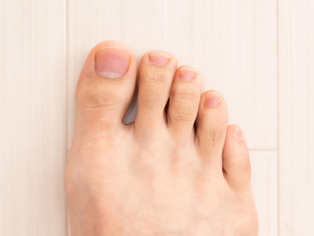 気になる足の指毛!親指だけ毛が生えるのはなぜ?正しい処理方法ご紹介!のサムネイル