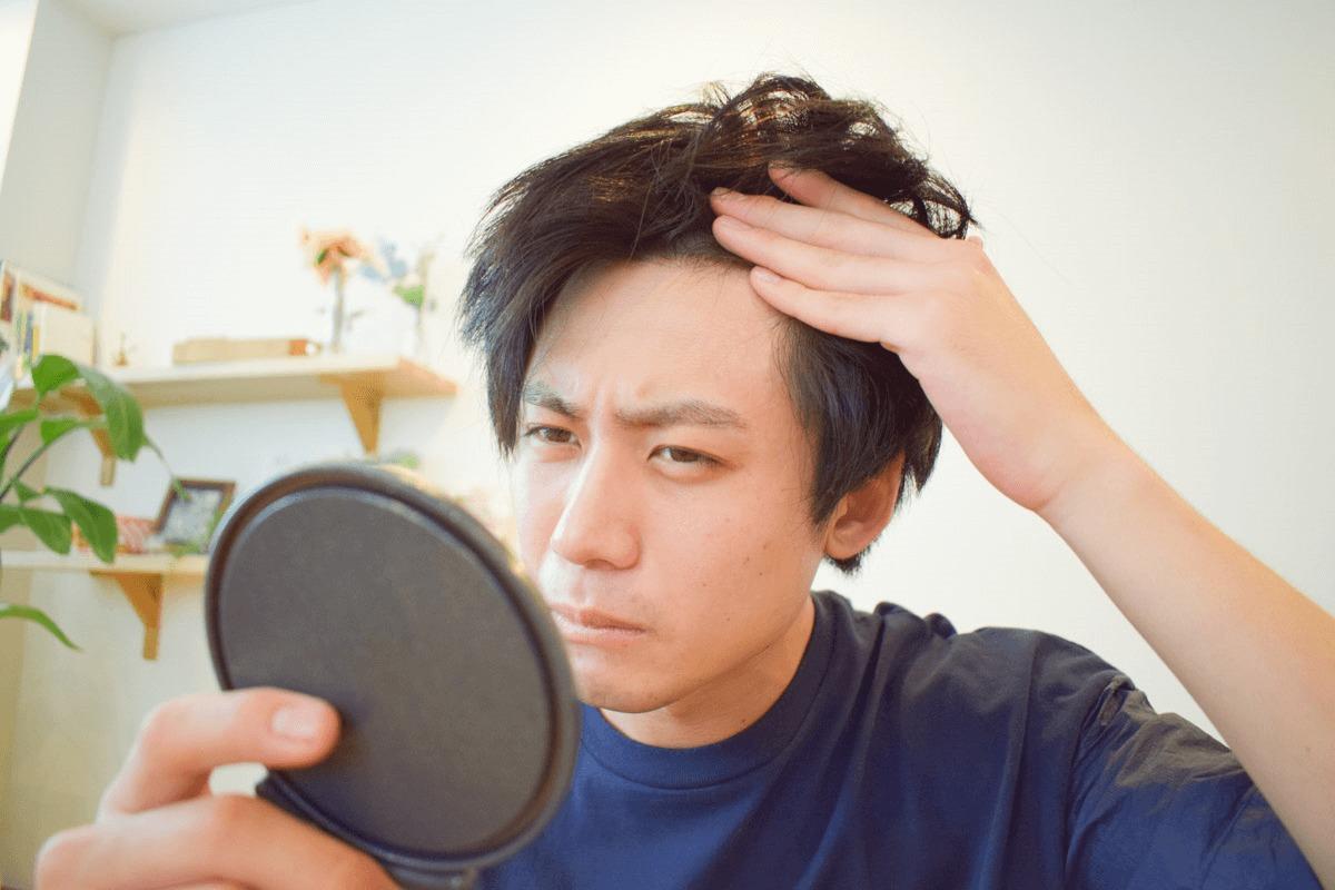 頭皮に傷がある時のヘアカラーは絶対NG!髪やカラダに与える影響を徹底解説のサムネイル