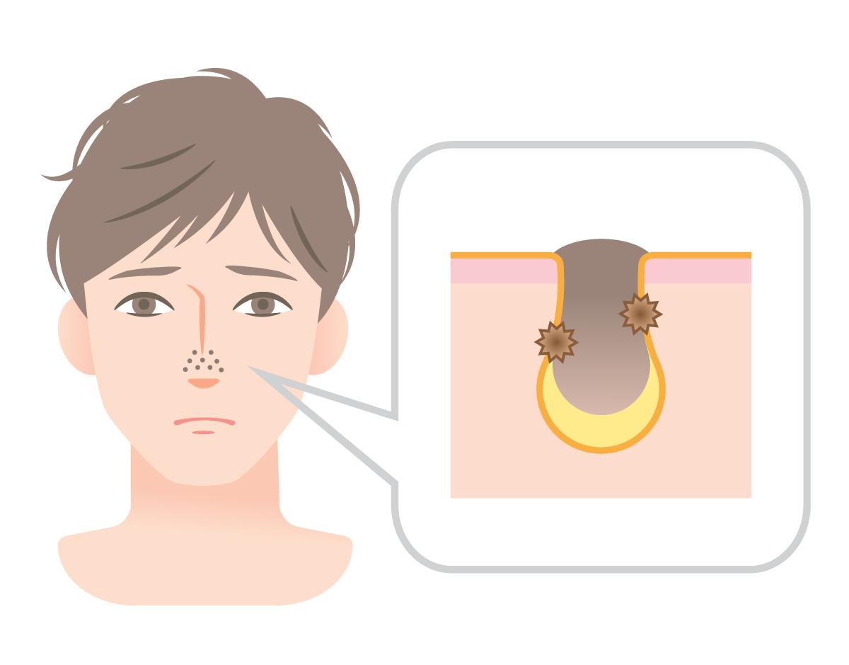男の毛穴の黒ずみの原因と正しいケア方法・メンズ向けおすすめ商品ご紹介のサムネイル