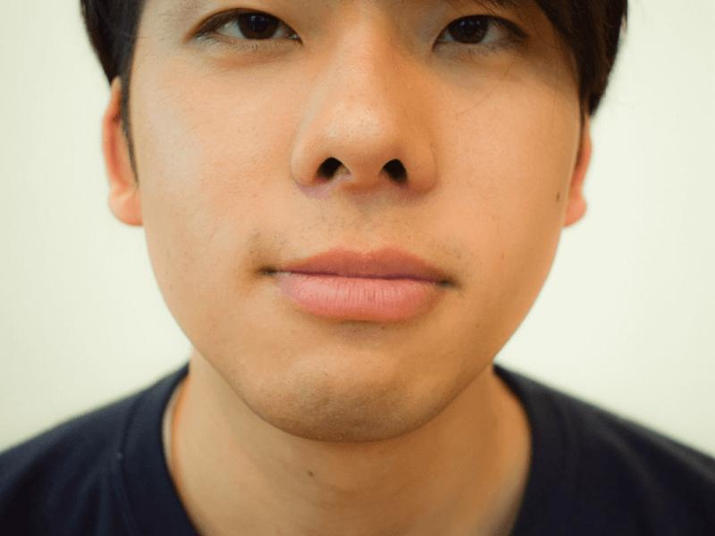 s_70_10,男 唇 乾燥