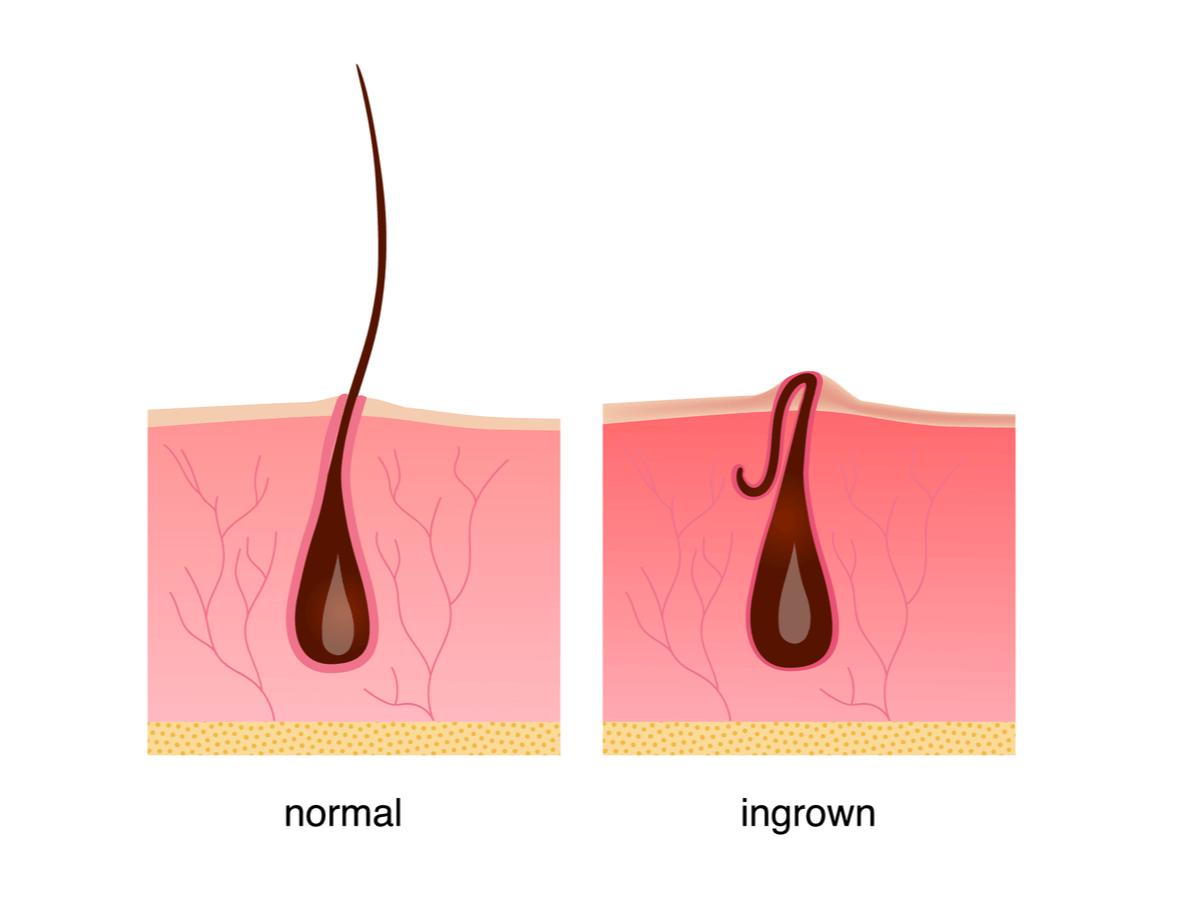 ひげの埋没の放置は危険!怖すぎるリスクと安全でおすすめなケア方法のサムネイル